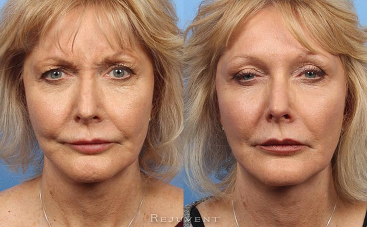 Botox frown lines before and after results