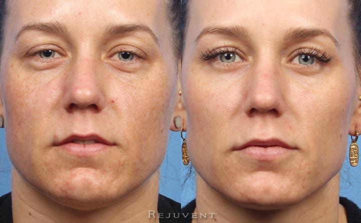 FotoFacial Clear Skin Results