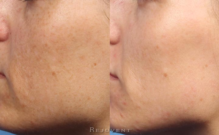 IPL clear skin results with less pigmentation
