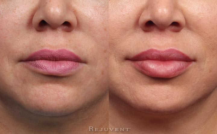 Plumper Lips and Better Asymmetry