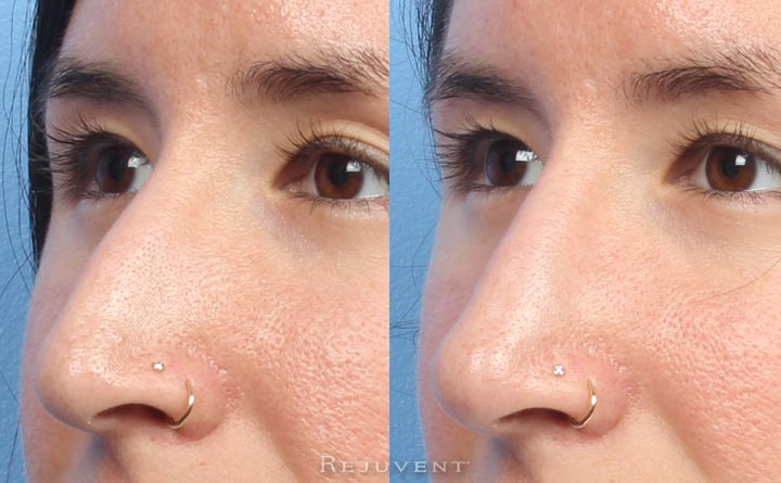 Closeup of Non-surgical nose sculpting with filler