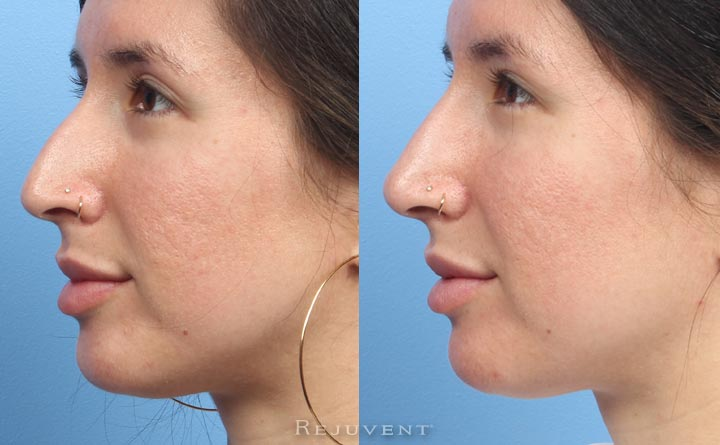 Amazing Non-Surgical Nose Results