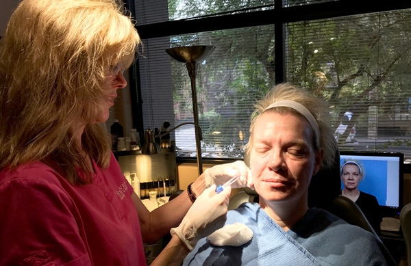 Dr. Kelly Bomer injecting filler on patient