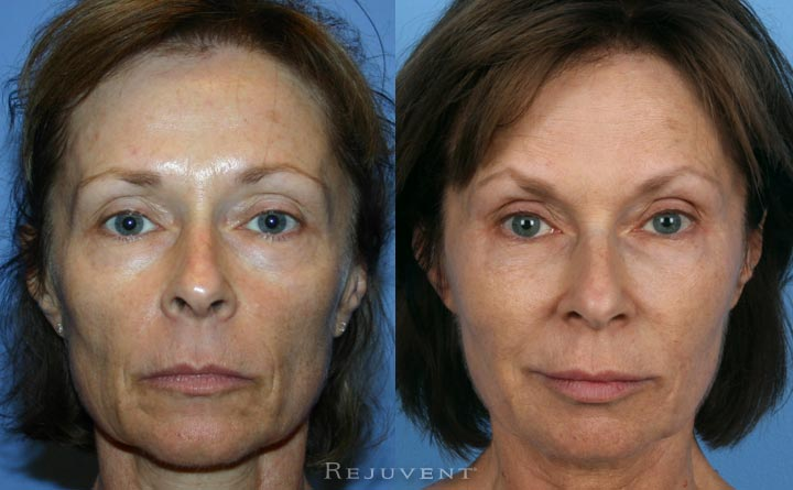 Long-term before and after liquid facelift rejuvenation
