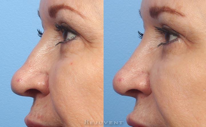 Elderly Patient Non-Surgical Nose Filler