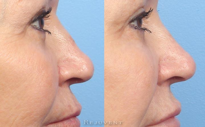 Elderly Patient Non-Surgical nose job