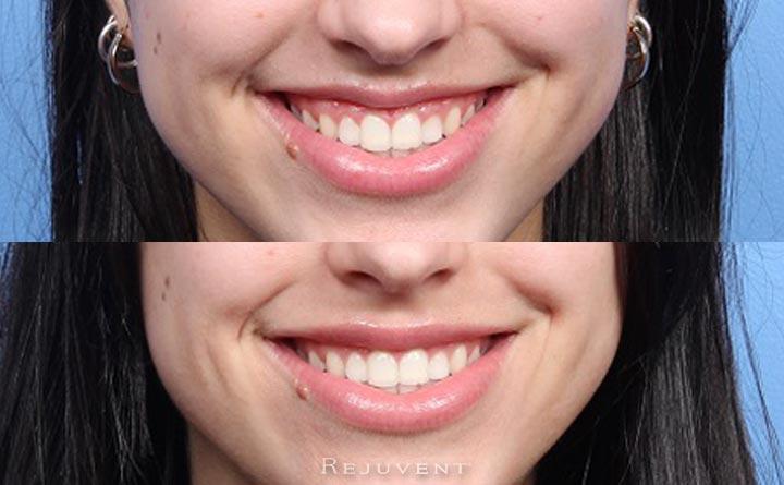Closeup Gummy Smile and Larger Top Lip