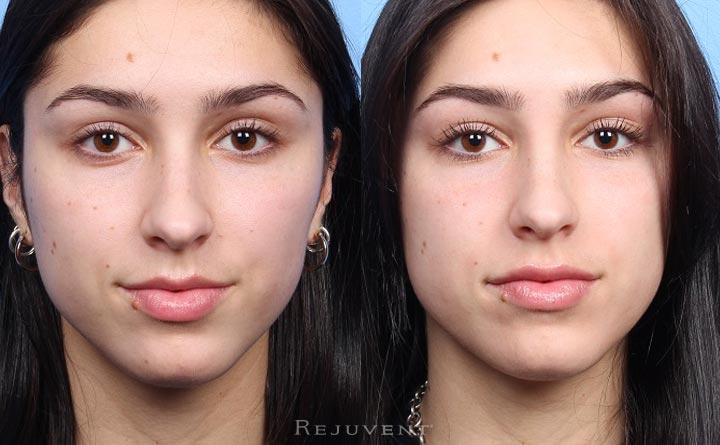 Filler and Botox natural look