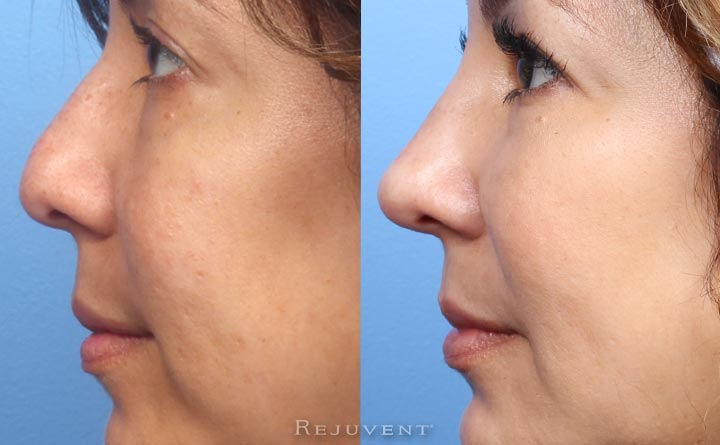 Restylane Lift Non Surgical Nose Job