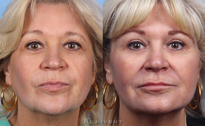 Eyebrow lift with Restylane Lyft
