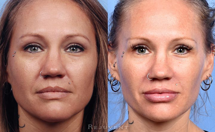 Plumper lips, smoother skin, better facial contours